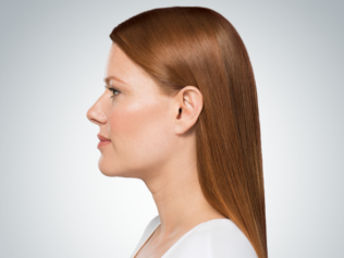 Kybella after two treatments