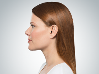 Kybella after three treatments